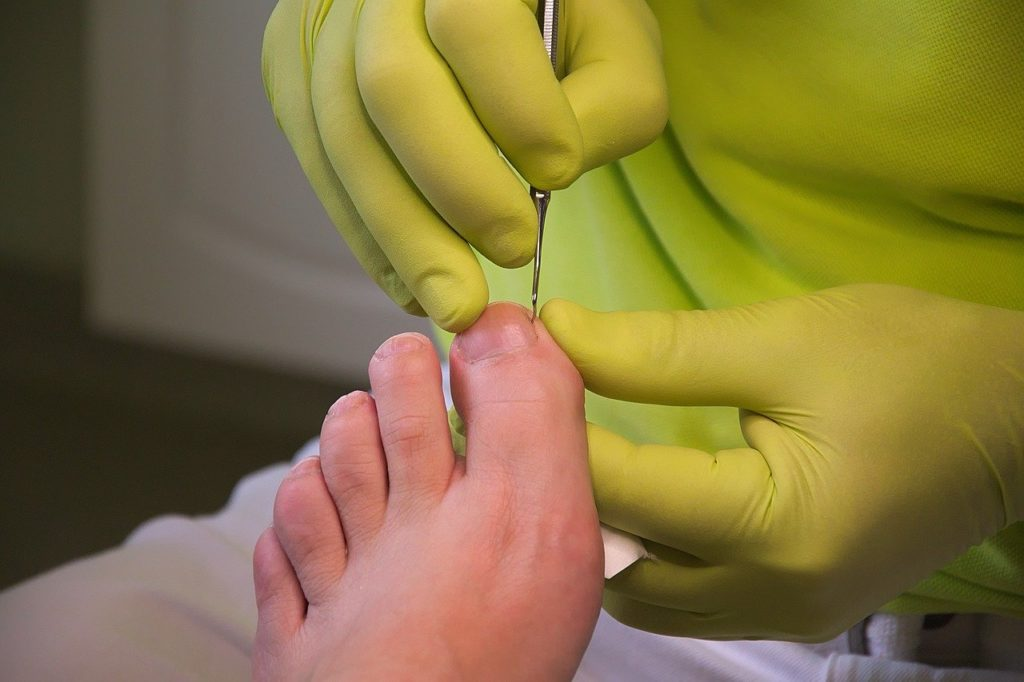 Hans-Linde-Pixabay-foot-care-3557103_1280